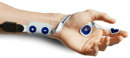 Arm with TwitchView electromyography (EMG) electrode array